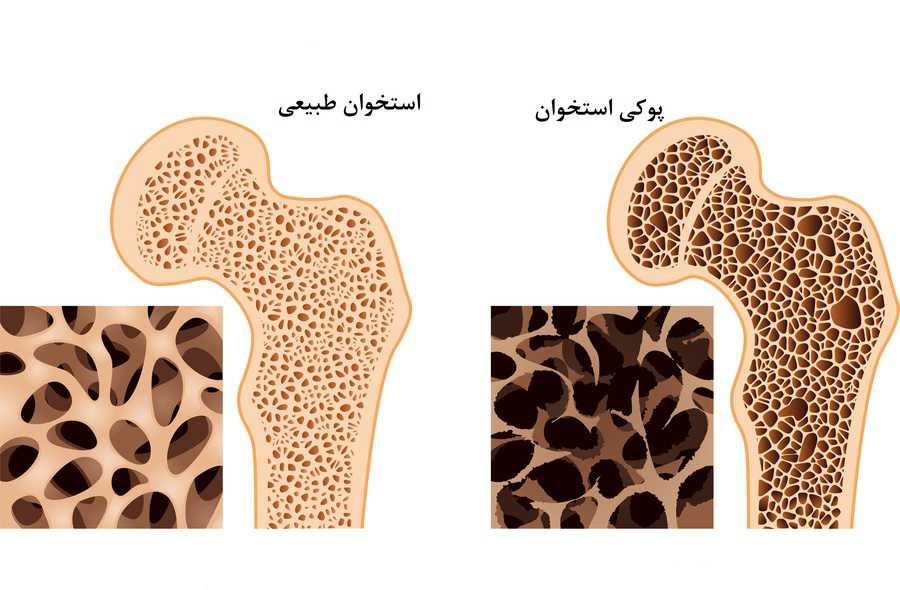 تشخیص پوکی استخوان