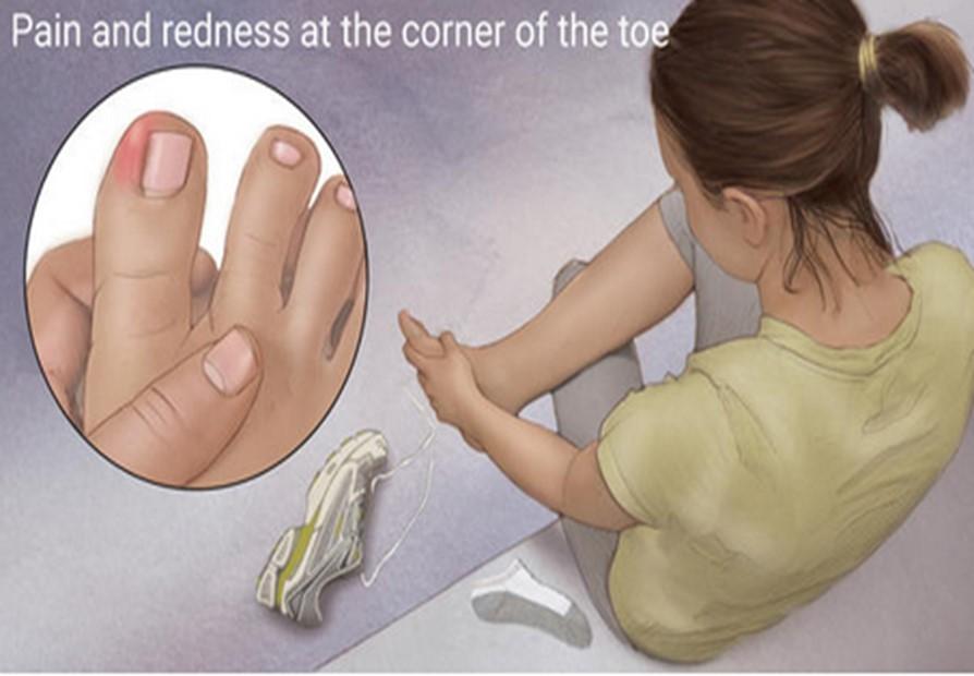 فرو رفتن ناخن انگشت پا در پوست