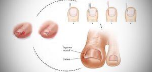 فرو رفتن ناخن در انگشت پا