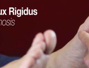 خشکی شست پا یا هالوکس ریجیدوس