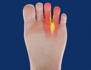 تزریق کورتن به انگشتان پا