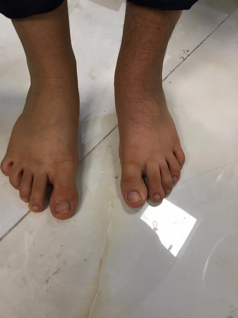 سه ماه پس از عمل صافى شديد كف پا در كودك