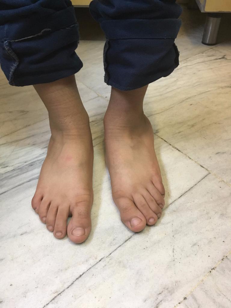 صافى شديد كف پا در كودك ٩ ساله (قبل از عمل)