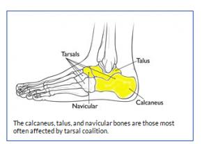 اتصال غیر طبیعی استخوان های پا