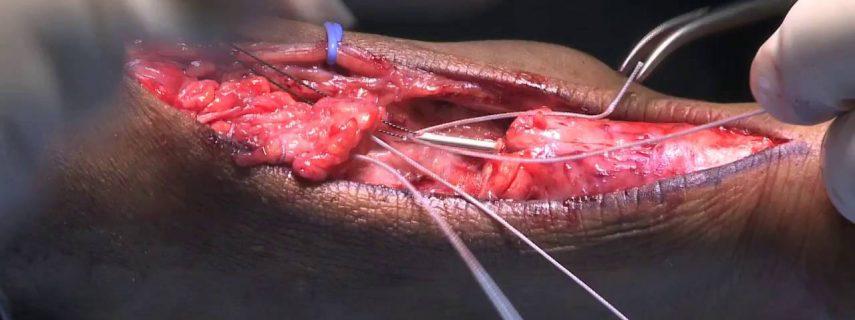 جراحى تاندون آشيل