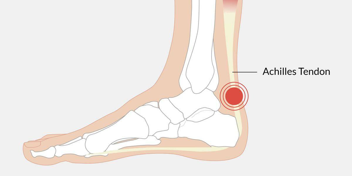 التهاب تاندون آشیل