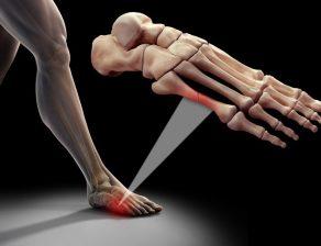 شکستگی استخوان کف پا