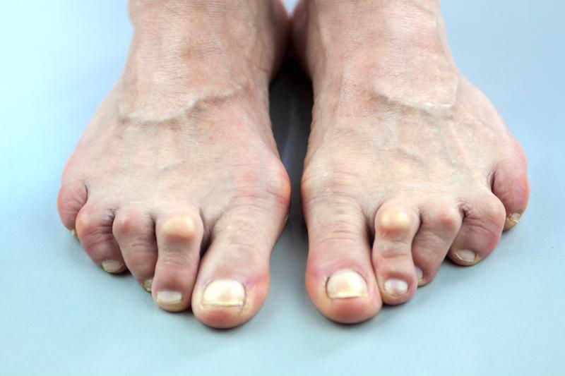 آرتروز انگشتان پا
