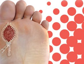 آنتی بیوتیک زخم پای دیابتی