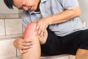 عفونت پلاتین ساق پا