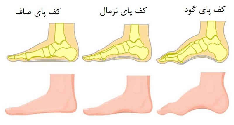 انواع قوس کف پا