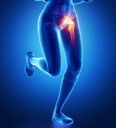 کشیدگی عضله خمکننده مفصل ران در ورزش
