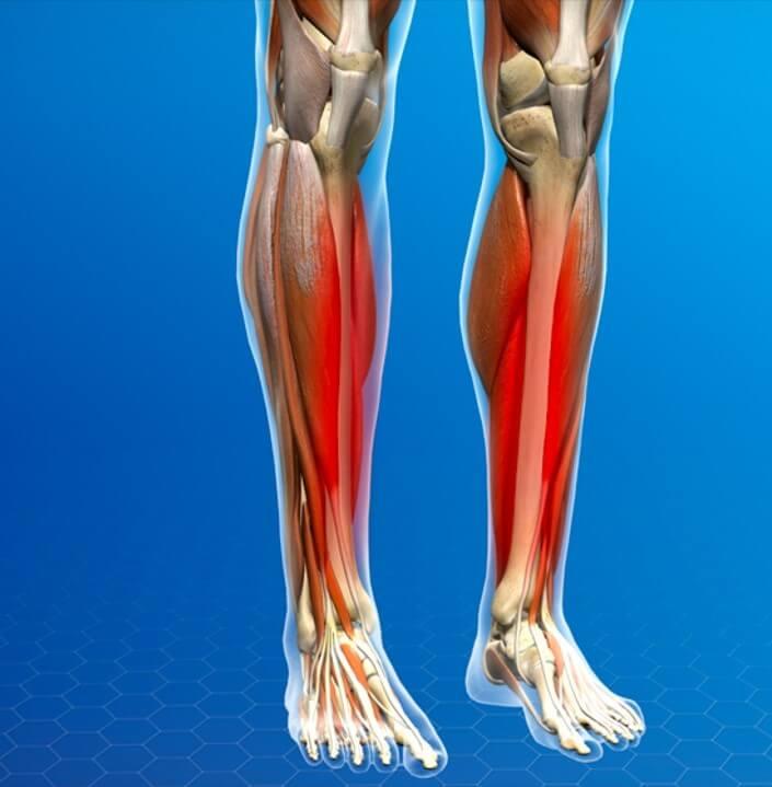 درد ساق پا در ورزش