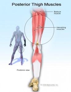 گرفتگی عضلات همسترینگ