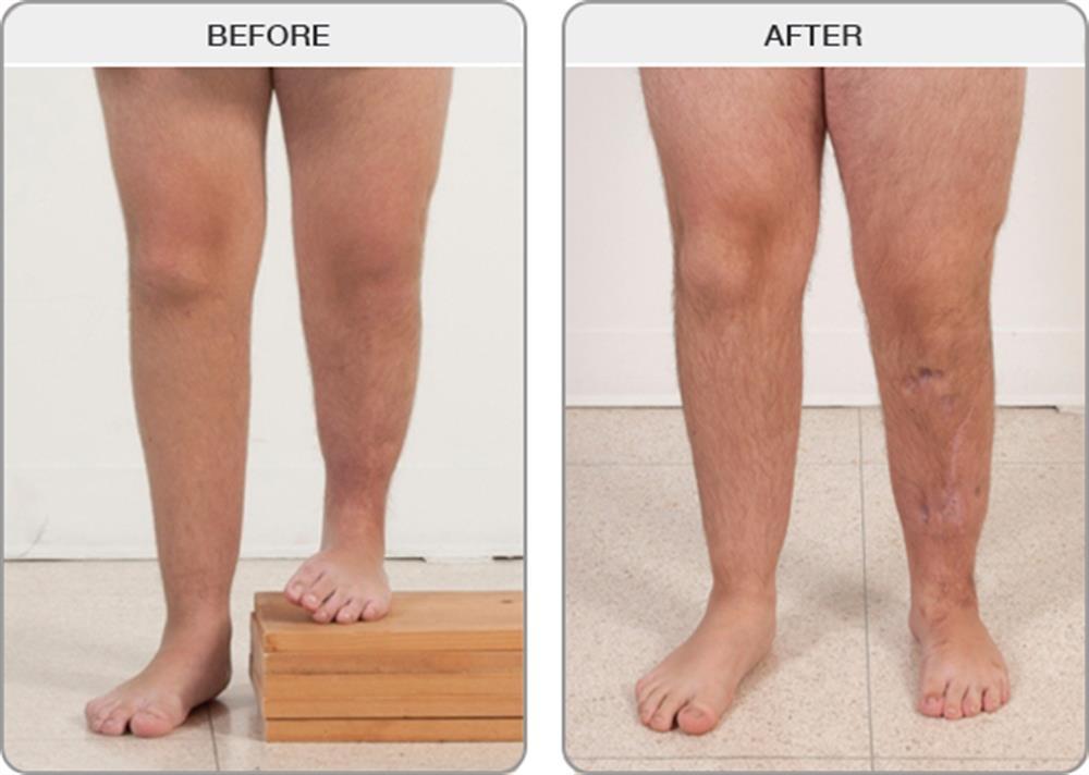 درمان کوتاهتر شدن یکی از پاها