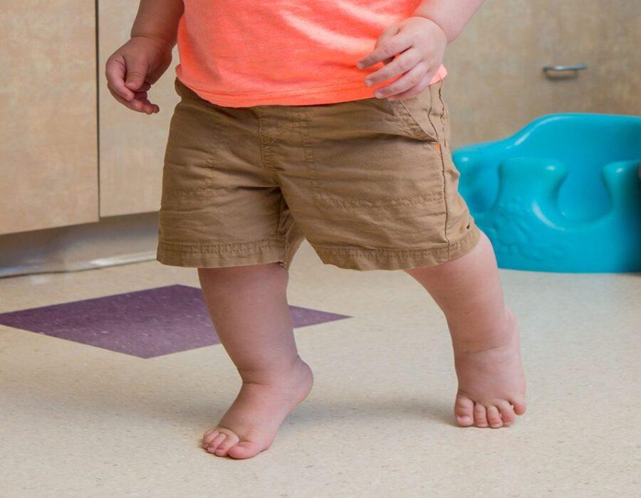 درمان کودکی که روی پنجه پا راه می روند