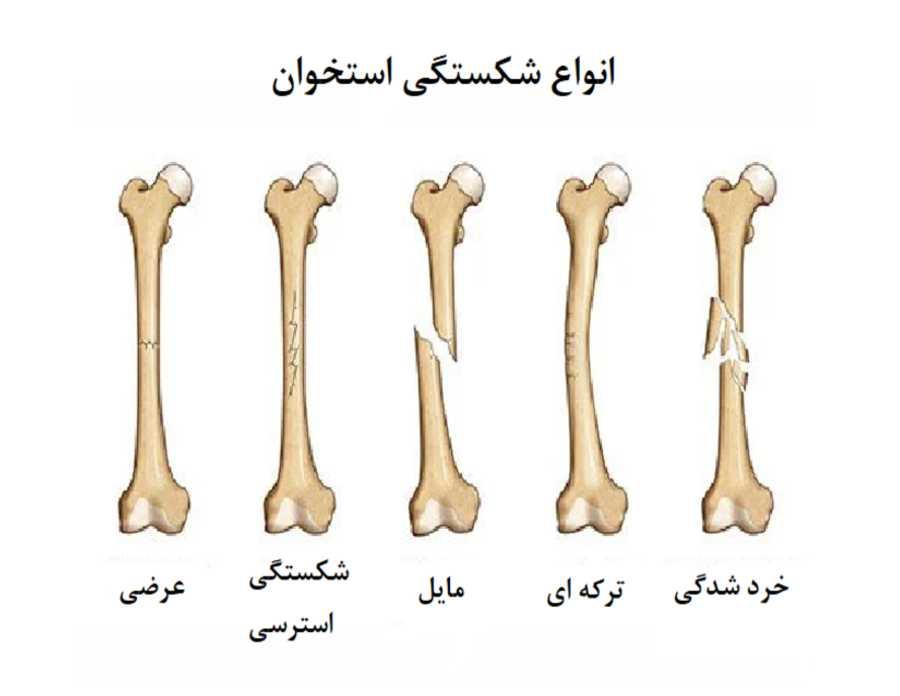 انواع شکستگی استخوان