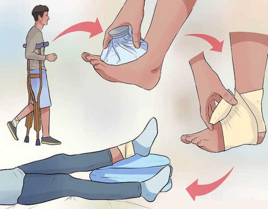 درمان در رفتگی انگشت پا