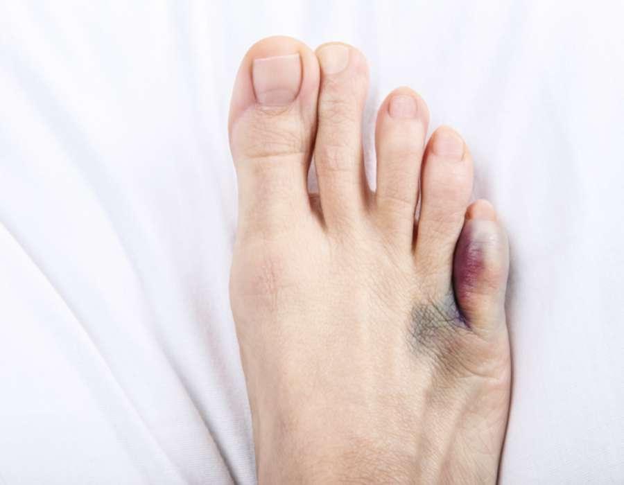 علائم در رفتگی انگشت پا