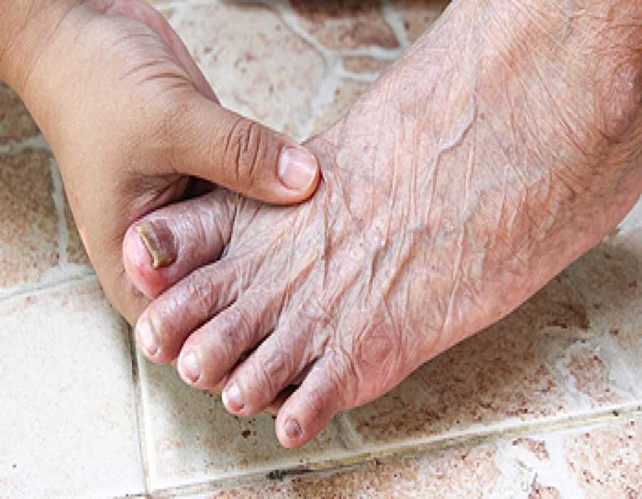 پیری و در رفتگی انگشتان پا