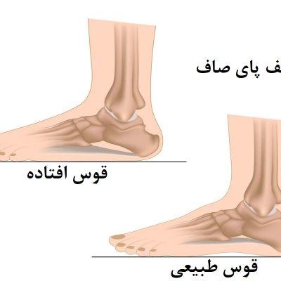 عوارض کف پای صاف