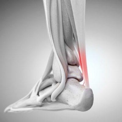 شکستگی استخوان تالوس