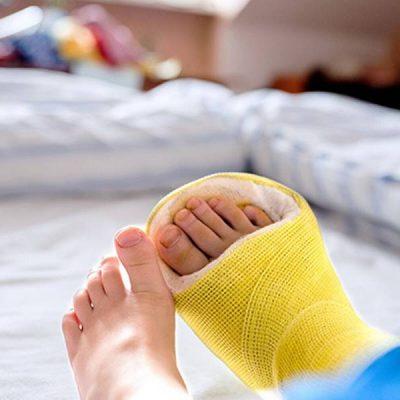 شکستگی مچ پا در کودکان