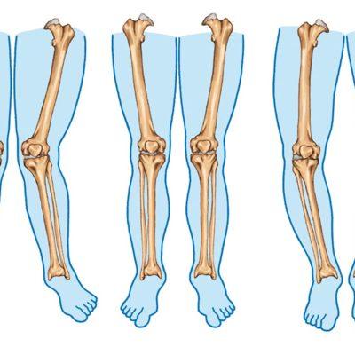 درمان پای پرانتزی در کودکان
