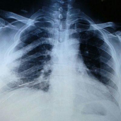 اسکن هسته ای استخوان